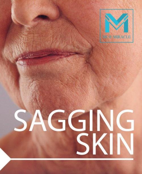 MI Sagging Skin