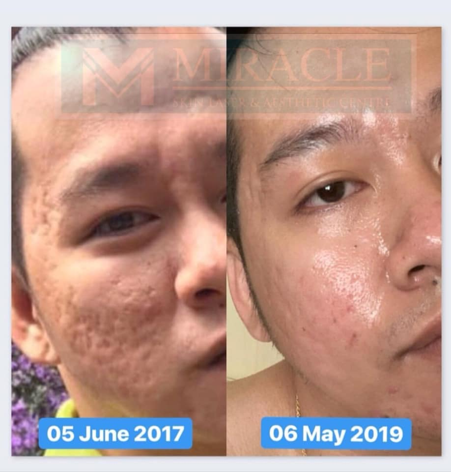 Miracle Laser Centre Acne Scar Treatment May 2019