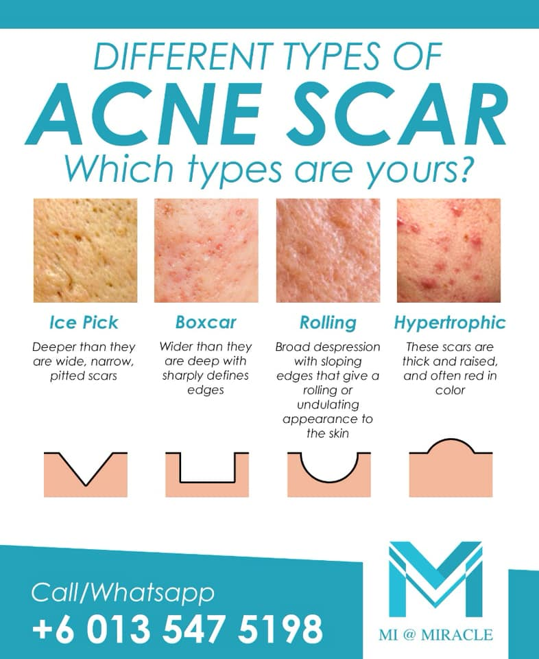 Miracle Laser Centre Acne Scar Types