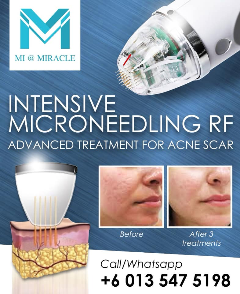 Miracle Laser Centre Microneedling Treatment
