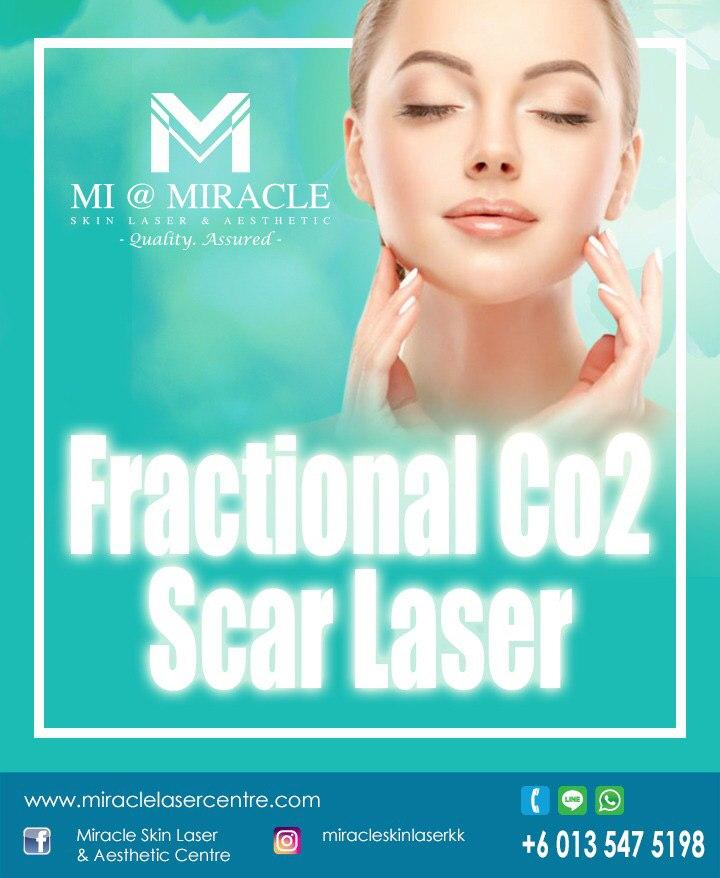 Miracle Laser Centre CO2 Laser