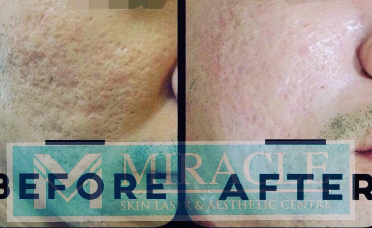 Miracle Laser Centre Pore Reduction Before After