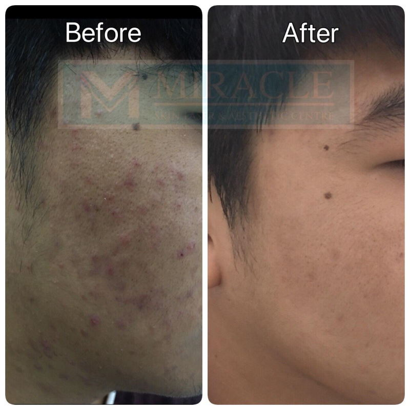 Miracle Laser Centre Pore Reduction Before After Study