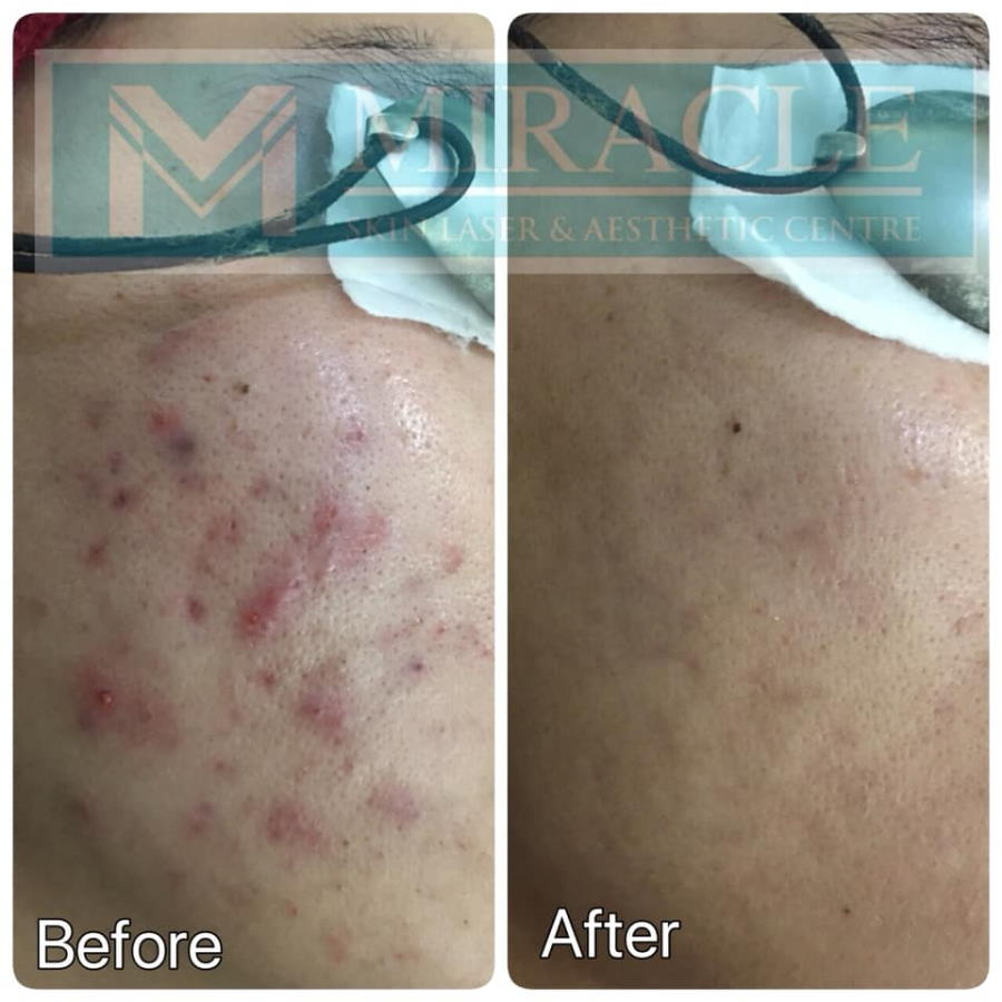 Miracle Laser Centre Acne Treatment Before After Oct 2019