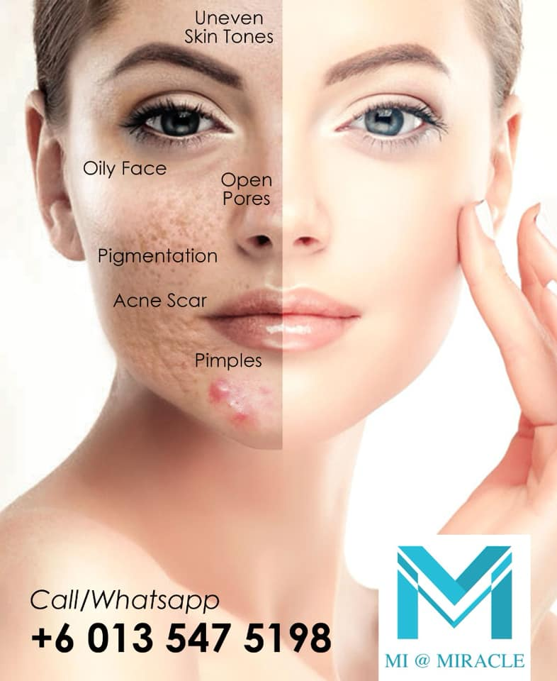 Miracle Laser Centre Facial Treatment Banner