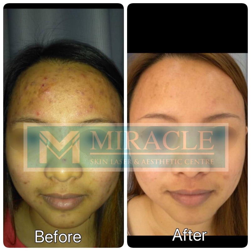 Miracle Laser Centre Acne Case Study 2