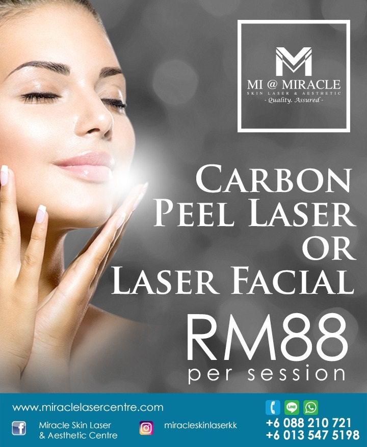 Carbon Peel Laser Facial MI Centre