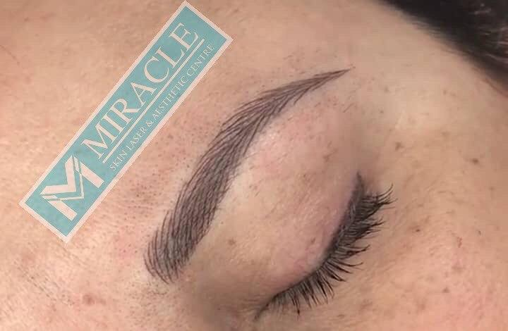 Miracle Skin Laser eyebrow embroidery